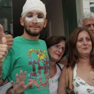 O estudante Vítor Suarez Cunha, de 21 anos, passou por uma complexa cirurgia para reconstrução da face e recebeu 63 pinos de titânio, 8 placas e uma tela para consolidar as fraturas provocadas por socos e chutes