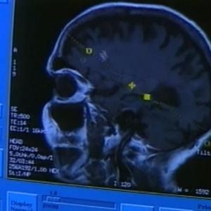 Em pequenas doses, remédio anticonvulsivo se mostrou eficaz, reduzindo problemas de memória